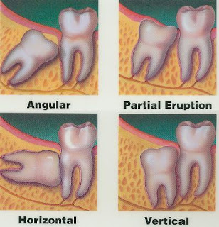 Wisdom teeth at Drummoyne Dental Practice