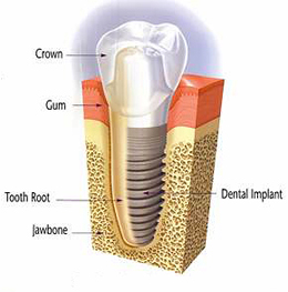 Implants at Drummoyne Dental Practice